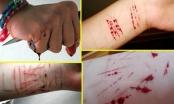 Nữ sinh 21 tuổi hành hạ bản thân bằng những vết cắt