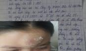 Đà Nẵng: Nghi vấn kẻ gian hành hung nữ công nhân trong phòng trọ để dằn mặt
