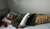 Đắk Lắk: Lẻn vào nhà trộm bị phát hiện, rút dao đâm chủ nhà 7 nhát rồi tẩu thoát
