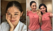 Thùy Dung bất ngờ bị bệnh thuỷ đậu trước thềm chung kết Miss International