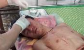 Sở GD&ĐT Nghệ An chỉ đạo làm rõ vụ thầy và trò bị nhóm côn đồ đánh nhập viện