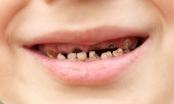 90% người Việt sâu răng, viêm lợi