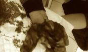 Bé 15 tuổi dập nát bàn tay vì nghịch thuốc pháo