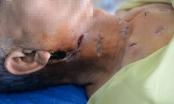 Tự ý đắp lá khi xuất hiện vết sưng, bệnh nhân đái tháo đường bị lở loét nghiêm trọng