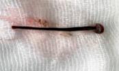 Nữ sinh viên rửa mặt ở suối bị đỉa chui vào mũi
