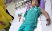 Ra đồng bắt cua cùng bố, bé trai 11 tuổi bị rắn hổ mang cắn nguy kịch