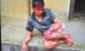 Bắc Giang: Người đàn ông tâm thần bị hàng xóm chém 7 nhát vào đầu