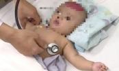 Điện thoại rơi trúng đầu, bé 3 tháng suýt tử vong