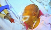 Cứu bé gái 20 ngày tuổi mắc bệnh lạ lần đầu gặp tại Việt Nam