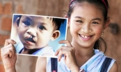 Gần 200.000 trẻ em sứt môi, hở hàm ếch Việt cần được phẫu thuật