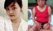 Hà Nội: Đã bắt được người chồng dùng xăng thiêu sống vợ