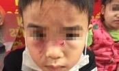 Hà Nội: Nghi vấn bé trai bị bố đẻ bạo hành dã man vì ăn trộm tiền