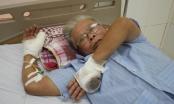 Nghệ An: Bị chém đứt lìa ngón tay khi vừa bước ra khỏi cửa hàng