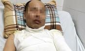 Hà Nội: Điều tra vụ người đàn ông bị tạt axit giữa phố