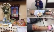 Hà Nội: Nghi án cháu bé 3 tuổi bị cha dượng và mẹ đẻ bạo hành đến tử vong