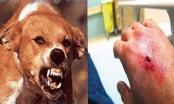 67 người chết vì chó dại cắn trong 9 tháng đầu năm