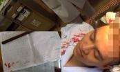 Hà Nội: Người nhà bệnh nhân hành hung một bác sĩ Phó Trưởng khoa