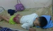 Vụ cháu bé bị bố đánh ở Thái Nguyên: Vì bỏ học nhiều ngày và ham chơi điện tử