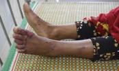 Một bệnh nhân viêm da dày sừng đã tử vong
