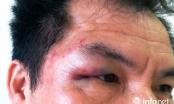 Trưởng đại diện Tạp chí Hoà nhập bị đánh túi bụi tại Nghệ An