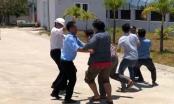 Bảo vệ công ty bị nhân viên đánh trọng thương vì... đôi dép