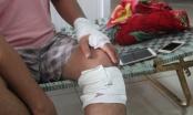 Bình Định: Con trai cán bộ y tế huyện đâm chém người