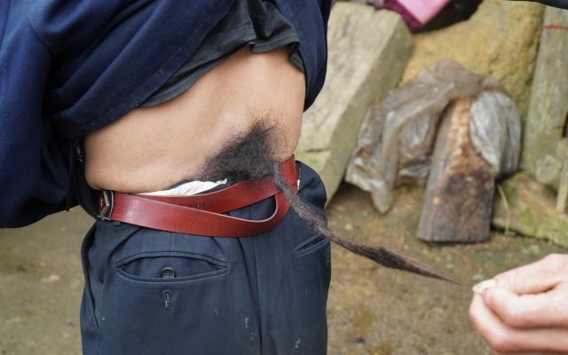 """Video phóng sự: Chuyện đời của """"người đàn ông mọc đuôi"""" ở Hà Giang"""