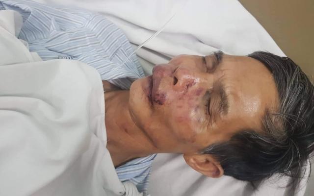 Phóng viên Tạp chí Luật sư Việt Nam bị đánh chấn thương sọ não do phát hiện xe chở gỗ không rõ nguồn gốc?