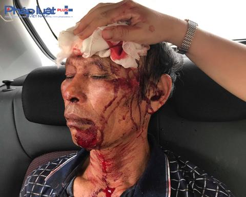 Nóng: Côn đồ xông vào nhà nổ súng truy sát, 3 người nhập viện tại Thanh Hóa