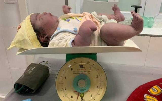 Sản phụ lập kỳ tích trong ngày 20/10, khi sinh thường một bé gái nặng đến 5,5 kg