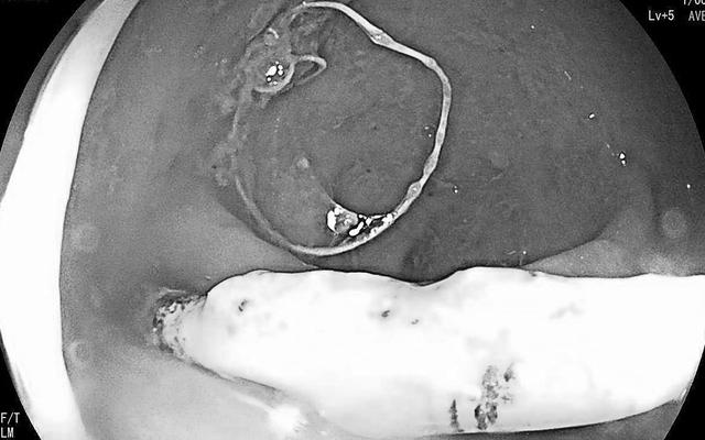 Quảng Bình: Nữ bệnh nhân bị vòng tránh thai đâm thủng trực tràng
