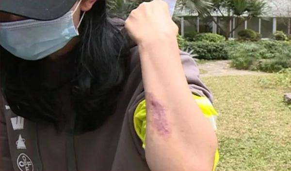 Bỏ gần 800 triệu nâng ngực, người phụ nữ bị hoại tử nặng