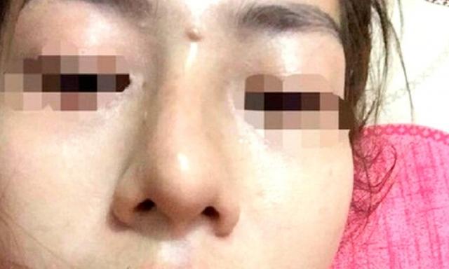 Vụ bé gái 13 tuổi tổn hại 42% sức khỏe khi đi nâng mũi: Có dấu hiệu bao che tội phạm?