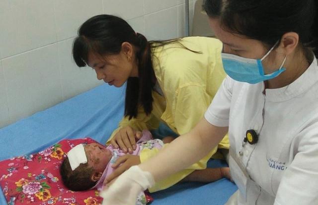 Bé 1 tháng tuổi bị chảy mủ toàn thân vì gia đình tắm lá cho trẻ