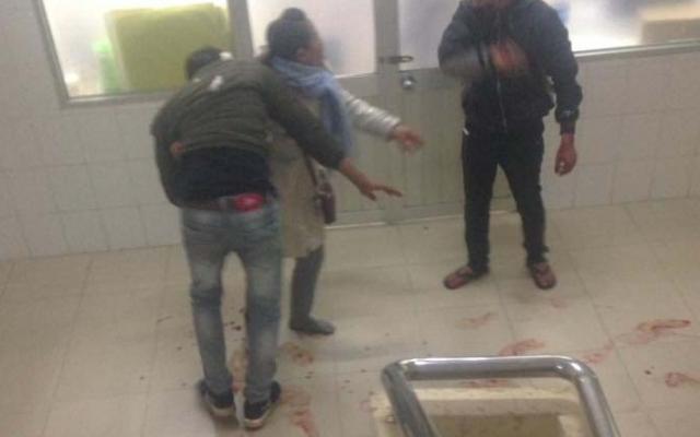 Lâm Đồng: Điều tra vụ nam thanh niên bị đâm trọng thương tại bệnh viện