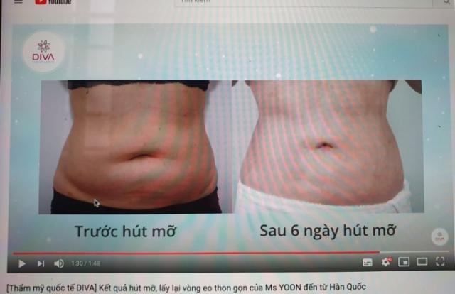 """TP HCM: Thẩm mỹ Quốc tế Diva quảng cáo dịch vụ """"chui"""" còn """"nổ"""" đã được Sở Y tế cấp phép"""