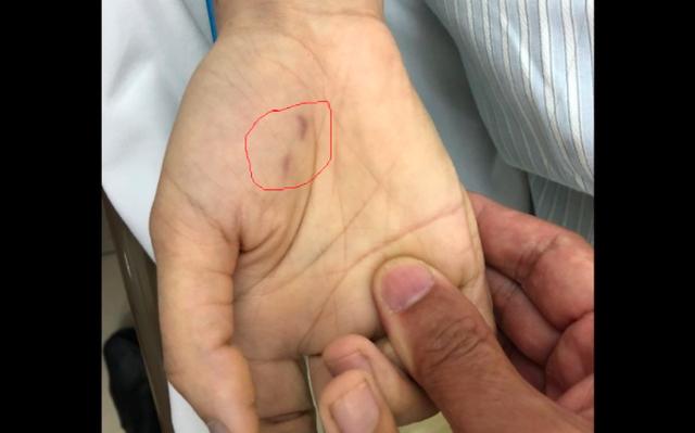 Bị chó ốm cắn vào tay, nữ bác sĩ thú y trẻ tuổi tử vong vì bệnh dại