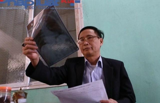 """Vụ """"thần y"""" tự phong chữa khỏi các bệnh ung thư ở Tuyên Quang: Phạt 35 triệu đồng"""
