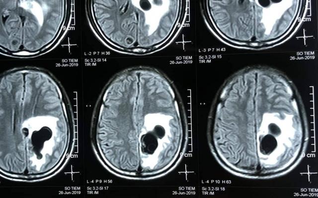 Chụp CT phát hiện 5 ổ sán làm tổ trong não nam bệnh nhân