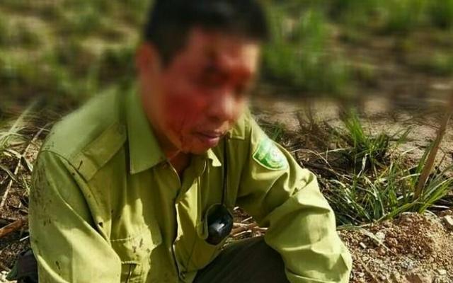 Làm rõ vụ kiểm lâm bị đánh toác đầu ở Đắk Lắk